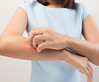 New treatment options for Eczema - IHR Magazine
